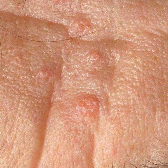 sebaceous-hyperplasia