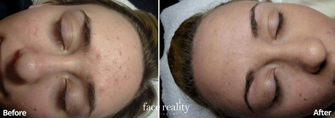 Acne Treatment - Before and After - 2