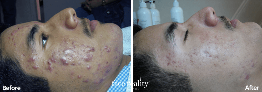 Acne Treatment - Before and After - 3