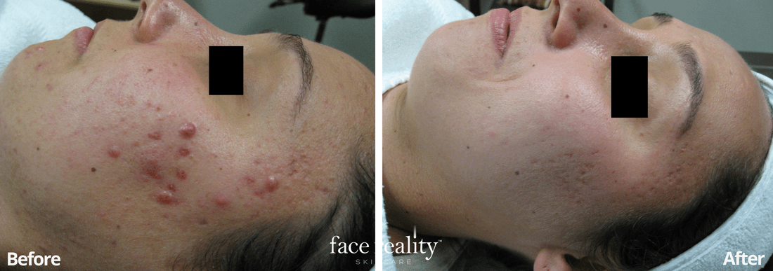 Acne Treatment - Before and After - 6
